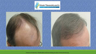 Hair Transplant Before – After Photos