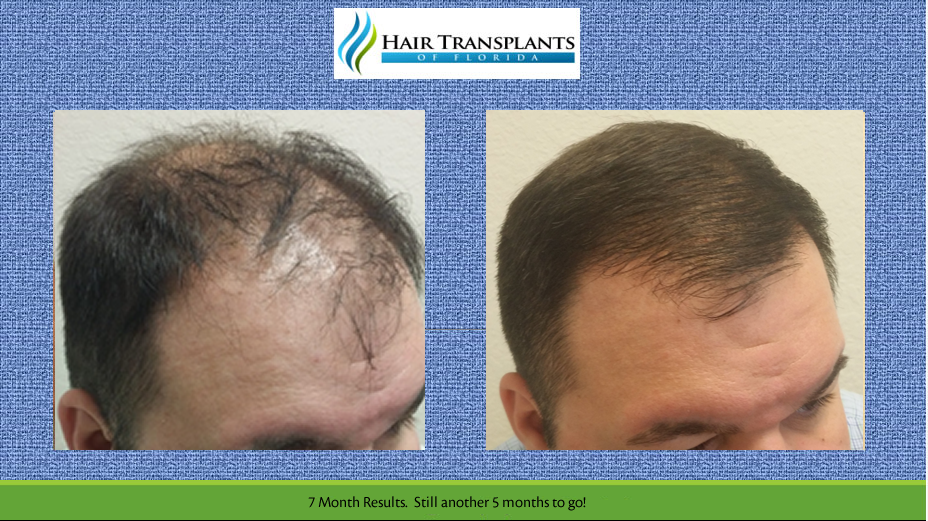 Orlando Hair Transplant Results for Jack with Before After