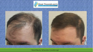 Orlando Hair Transplants Before After Videos