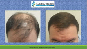 Orlando Hair Restoration Before After Photos