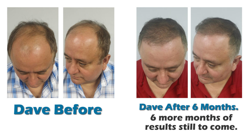 Orlando hair transplants before after photos and video