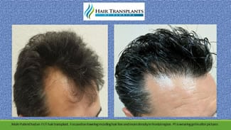 Orlando hair clinic before after photos.
